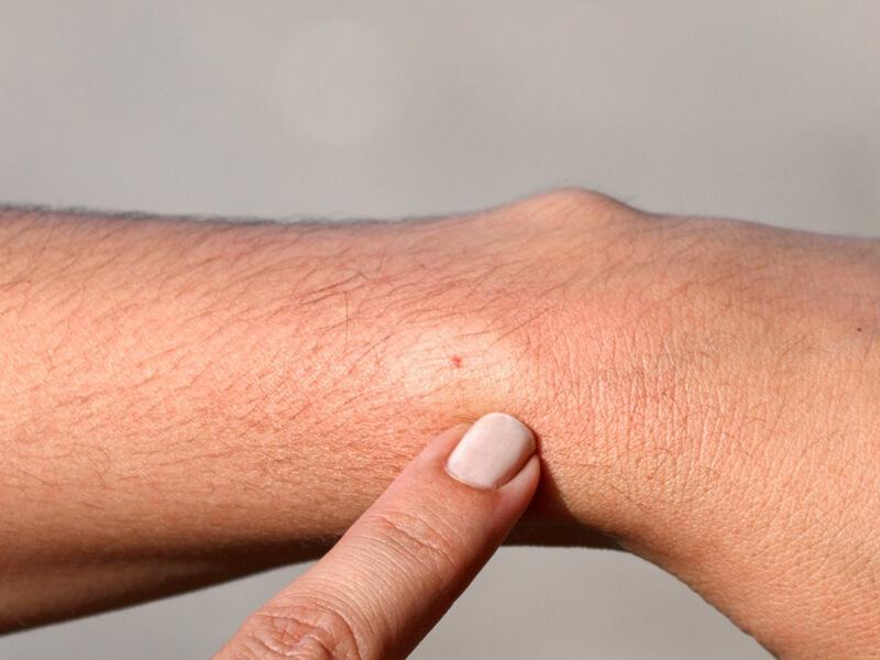 Travazol Krem Böcek Isırıkları Veya Arı Sokmaları İçin Kullanılabilir Mi?